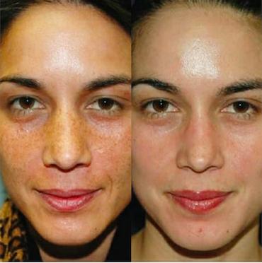 hyperpigmentatie verminderen